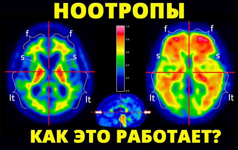 пирацетам,таблетки,ноотропы,мексидол,психостимуляторы,ум,мозг,мельдоний,допинг,спорт,быстро, Как работают ноотропы на самом деле?